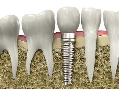 Bone Grafting Oral Surgeon