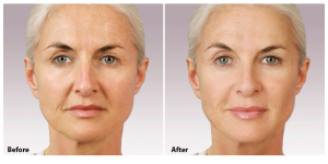facial surgery San Francisco