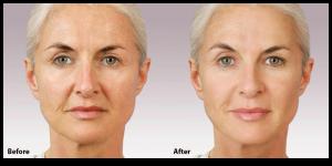 facial surgery San Francisco