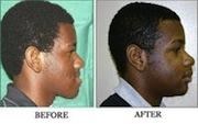 San Francisco Bay Area Orthognathic Surgeon (Jaw surgery)