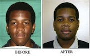 Orthognathic Surgery - Before and After - San Francisco, California