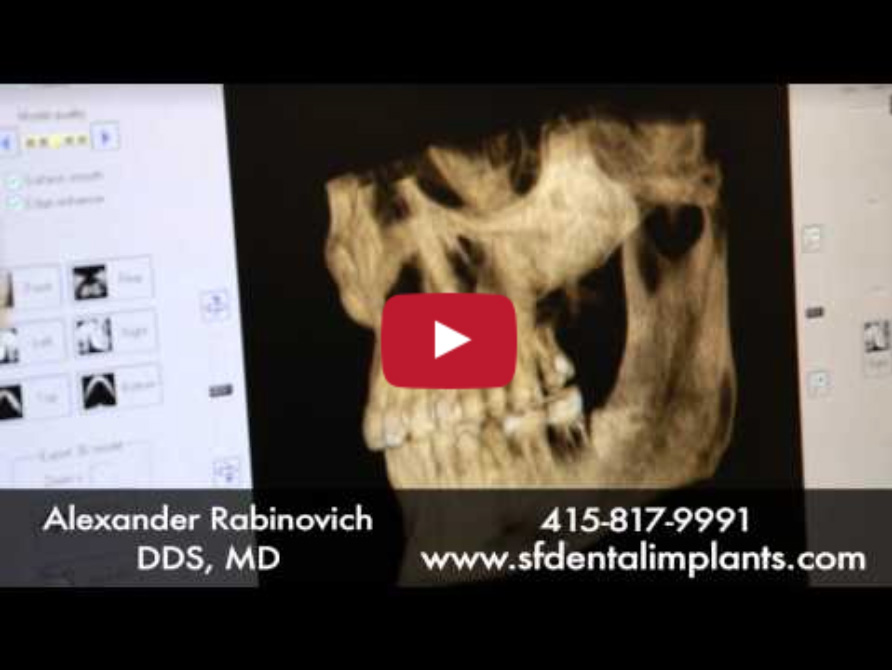 Understand Dental Implants: Overview to Dental Implant Surgery